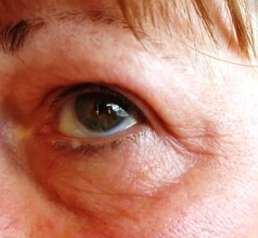 post-colagen-treatment-close-up